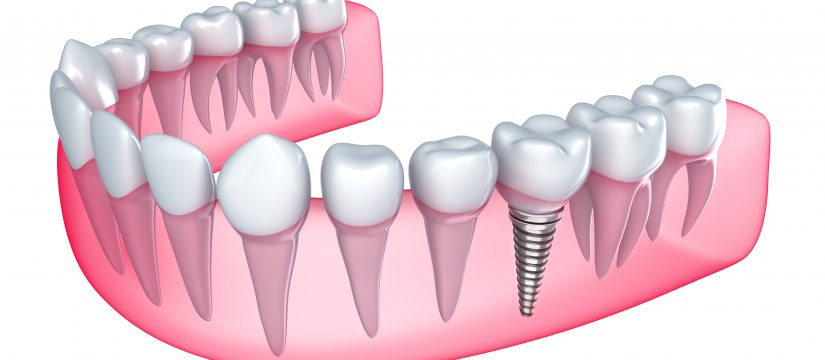 How and why is bone lost when teeth are lost?