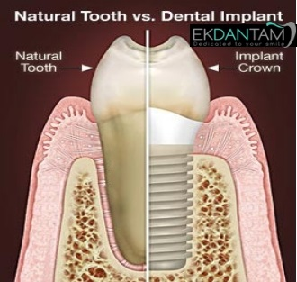 Natural tooth v/s Implant