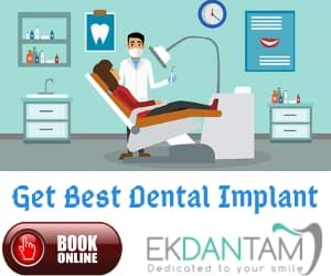 Get Best Dental Implant (1)